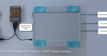 Biofeedback-for-anxiety-ADHD-autism-therapy