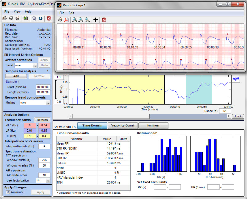 Heart Rate Variability HRV Electrocardiogram